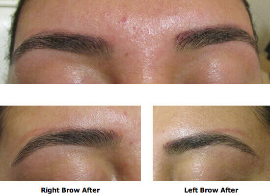 Eyebrow permanent makeup before and after style guru for Best eyebrow tattoo san diego