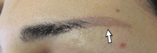 Remove Eyebrow Tattoo At Home - home done tattoo removal