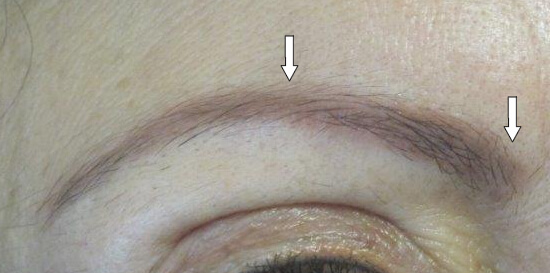 Permanent makeup removal cream style guru fashion for Saline tattoo removal